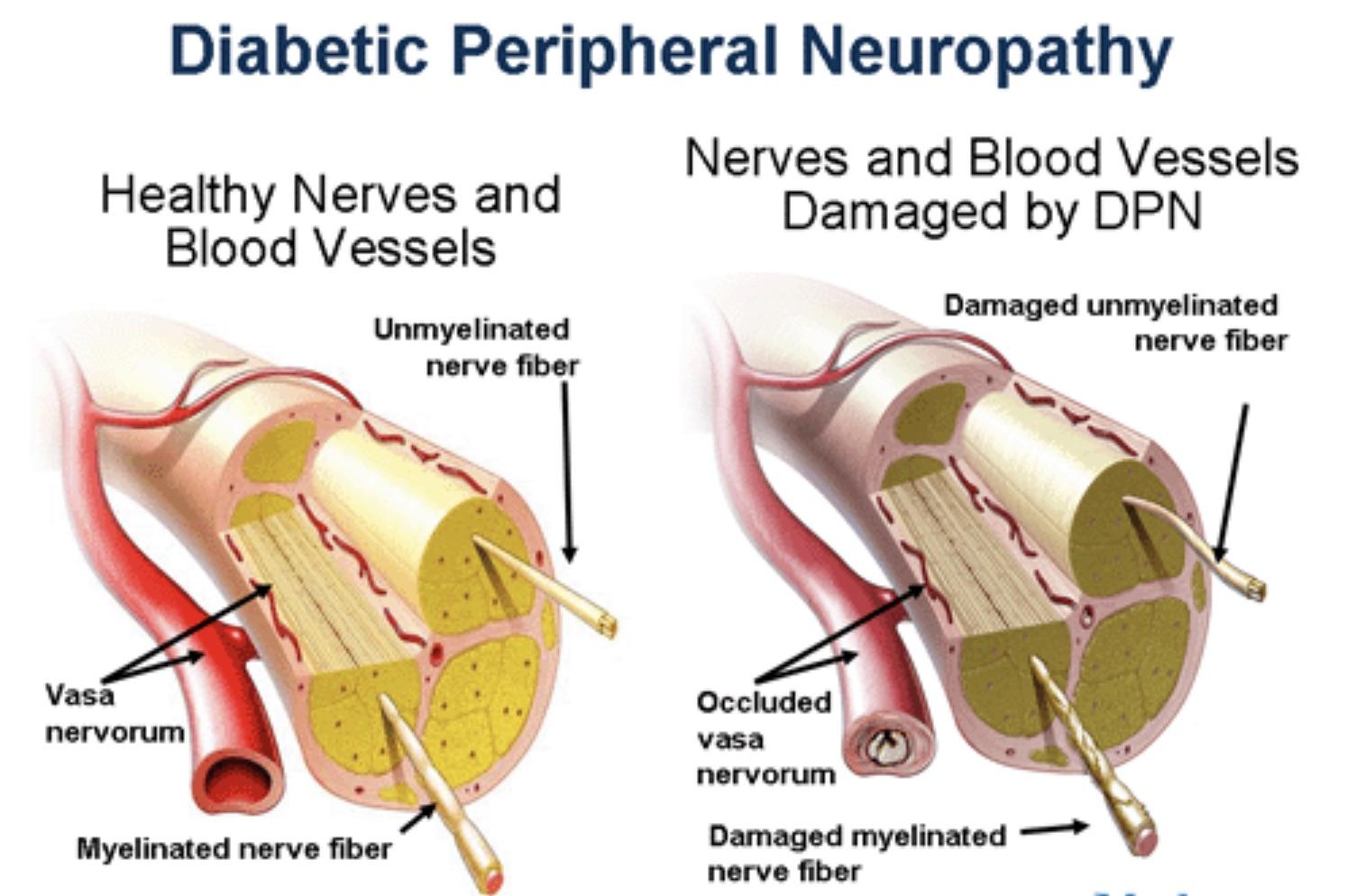 neuropatia diabetica enfermeria oposiciones