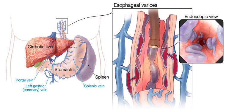 varices-esfagicas