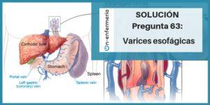 varices esogagicas