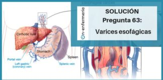 varices esogagicas