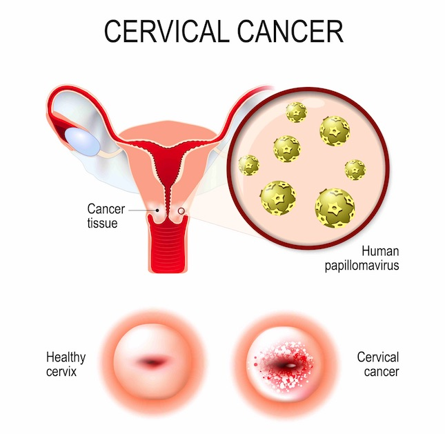 cancer cervix