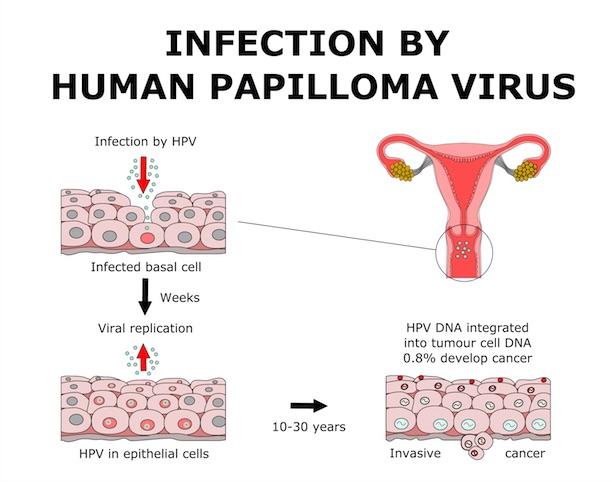 Virus papiloma humanos oposición matronas
