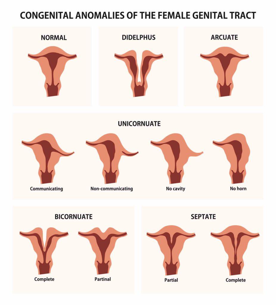 anomalías pélvicas examen ope de obstetricia