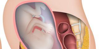 test de ope matronas tema placenta previa