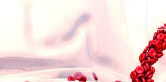 signos básicos enfermo con hemorragia importante- simulacros tcae- signos hemorragia
