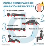Infografía zonas de úlceras - Temario integridad cutánea OPE Enfermería