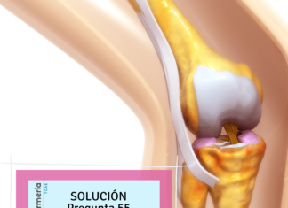 Solución nº55 TCAE - Tipos articulaciones
