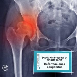 Solución pregunta examen OPE Fisioterapia 14 Deformaciones congénitas
